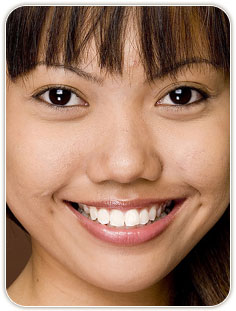 Wisdome Teeth Procedure Chicago